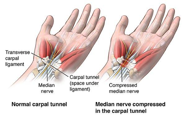 carpal-tunnel-diagram